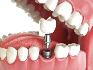 implantologia cuneo