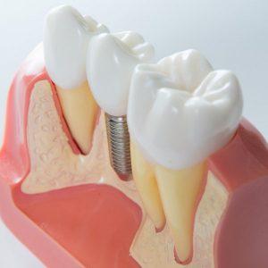 implantologia carico immediato cuneo