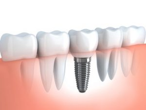 impianto dentale cuneo implantologia
